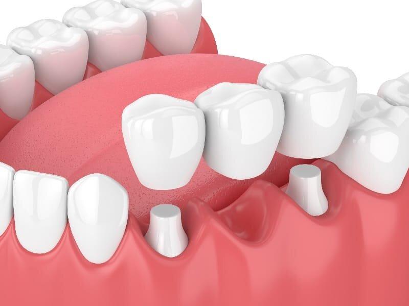 پل یا بریج دندان چیست؟