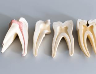 کانال ریشه دندان