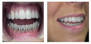 ارتودنسی دندان پایین