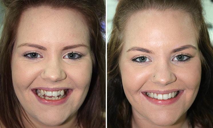 ارتودنسی دندان قبل و بعد