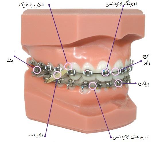 حلقه ارتودنسی-1