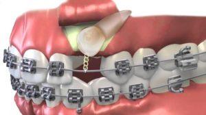 ارتودنسی همراه با کشیدن دندان