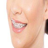 مهمترین نکات پیرامون ارتودنسی زیبایی دندان