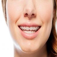 ارتودنسی زیبایی دندان