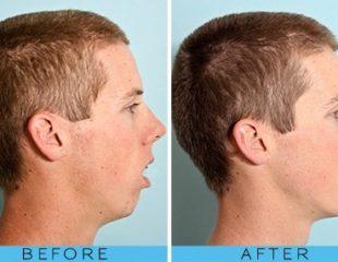 ارتودنسی قبل از جراحی فک-1