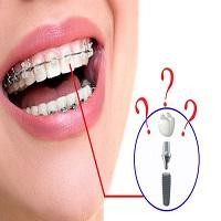 آشنایی با ارتودنسی دندان ایمپلنت شده