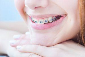 ارتودنسی دندان اقساطی