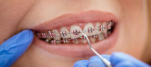ارتودنسی دندان پر شده