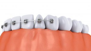 ارتودنسی دندان ایمپلنت شده